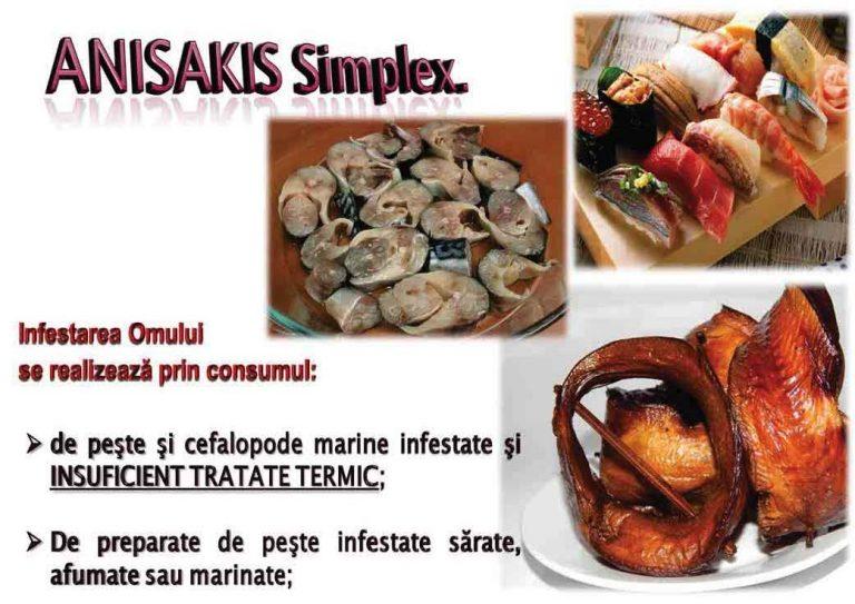 ANISAKIS SPP (6)